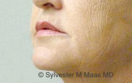Falten Mund Behandlung 3f Nachher Bild Dr Maas Zug Schweiz