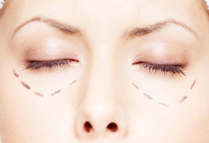 Information zur Augenringe Korrektur Dr Sylvester M Maas