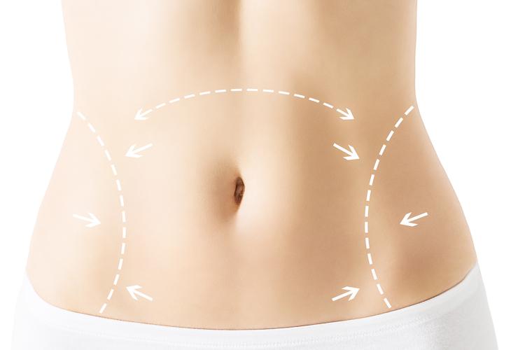 Information zur Bauchdeckenstraffung Dr Sylvester M Maas