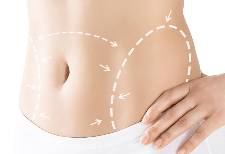Information zur Fettabsaugung Dr Sylvester M Maas