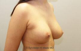 Nachkorrektur-Brustvergroesserung-1c-Vorher-Plastische-Chirurgie.ch