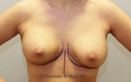 Nachkorrektur-Brustvergroesserung-1f-Vorher-Plastische-Chirurgie.ch