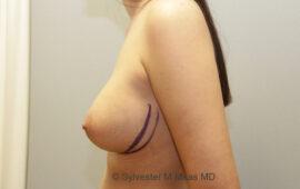 Nachkorrektur-Brustvergroesserung-1g-Vorher-Plastische-Chirurgie.ch