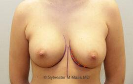 Nachkorrektur-Brustvergroesserung-1i-Vorher-Plastische-Chirurgie.ch
