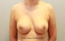 Nachkorrektur-Brustvergroesserung-1j-Nachher-Plastische-Chirurgie.ch