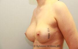 Nachkorrektur-Brustvergroesserung-1l-Nachher-Plastische-Chirurgie.ch