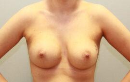 Nachkorrektur-Brustvergroesserung-1m-Nachher-Plastische-Chirurgie.ch