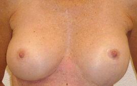 Nachkorrektur-nach-Bruststraffung-1a-Vorher-Dr-Maas-Zug