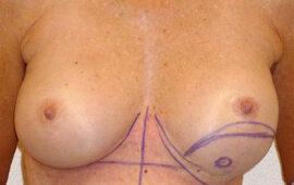 Nachkorrektur-nach-Bruststraffung-1d-Vorher-Dr-Maas-Zug