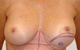 Nachkorrektur-nach-Bruststraffung-1dd-Vorher-Dr-Maas-Zug