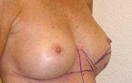 Nachkorrektur-nach-Bruststraffung-1e-Vorher-Dr-Maas-Zug