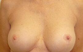 Nachkorrektur-nach-Bruststraffung-1j-Nachher-Dr-Maas-Zug