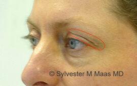 Nachkorrektur nach Oberlidstraffung Vorher 1k Dr Sylvester M Maas