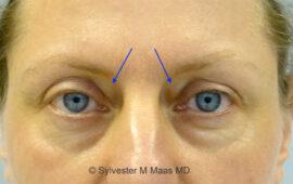 Nachkorrektur nach Oberlidstraffung Vorher 1m Dr Sylvester M Maas