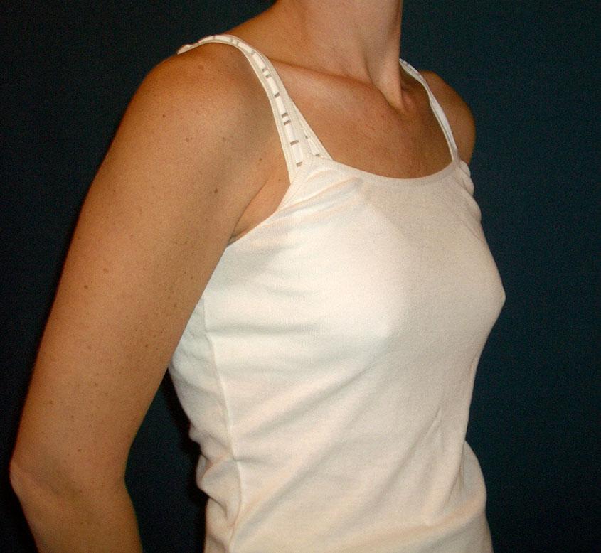 Bild realistische 3d Simulation Brustvergrößerung
