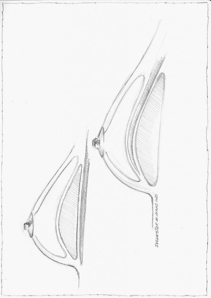Skizze brustvergroesserung Implantat Platzierung